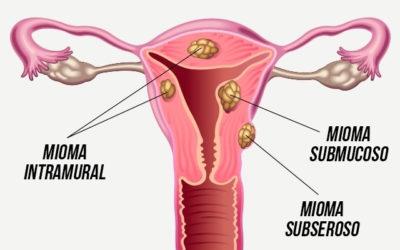 Impacto dos Miomas na Fertilidade